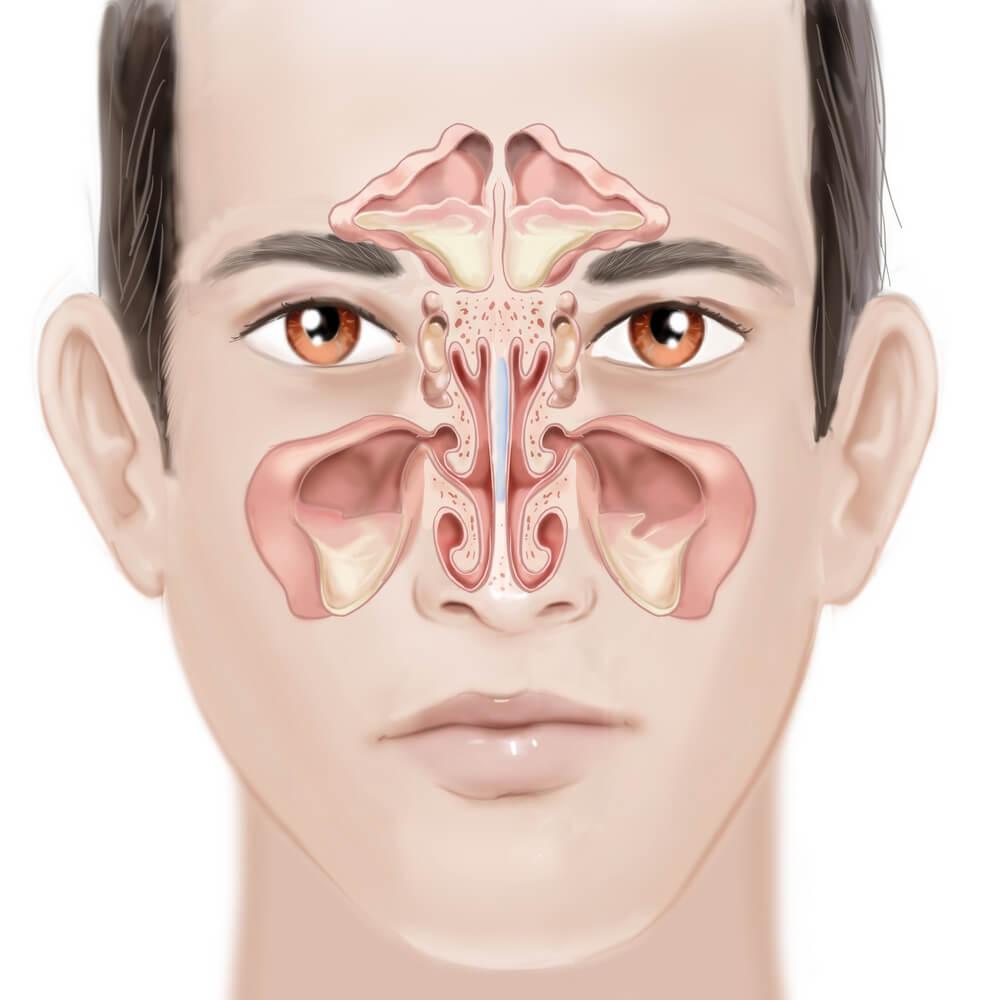 la phytothérapie pour guérir et prévenir la sinusite et la rhinite