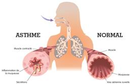 l'asthme peut être diminué grâce aux plantes médicinales