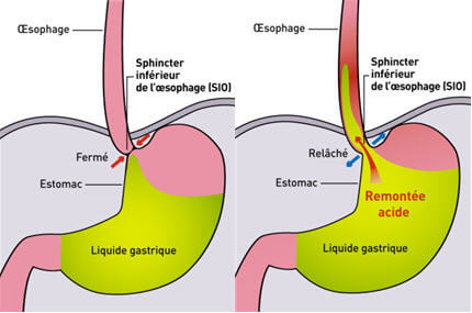 Traitement naturel des brûlures d'estomac (reflux gastrique)