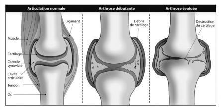 L'évolution de larthrose du genou