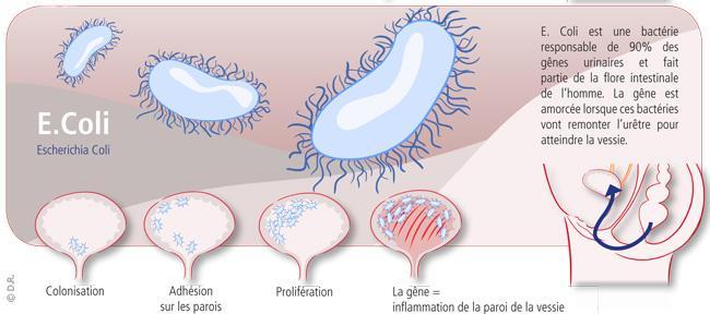 L'Escherichia Coli est responsable de 90% des infections urinaires