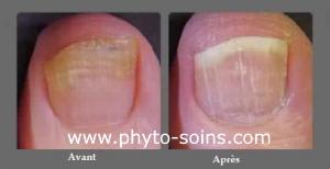 Mycose de l'ongle avant et après traitement