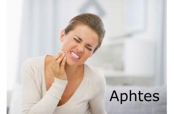 Traitements naturels des aphtes | phyto-soins