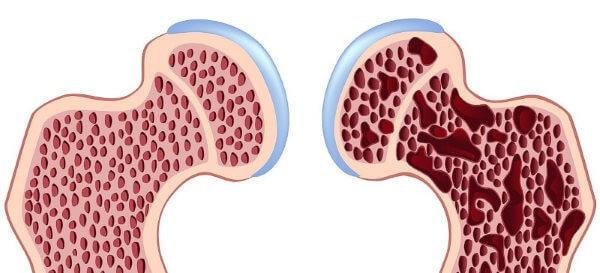 l'ostéoporose: la combattre avec les plantes