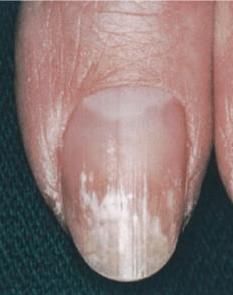 Granulation de kératine sur ongle verni phyto-soins