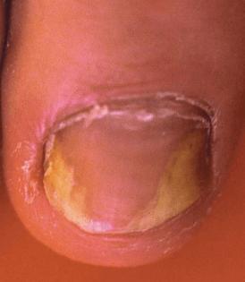 Onychomycose sous unguéale disto-latéral   phyto-soins