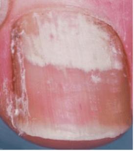 Onychomycose sous-unguéale proximale   phyto-soins
