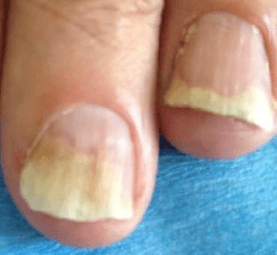 Psoriasis de l'ongle | phyto-soins